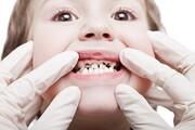 چرا مردم به درمانگران غیرمجاز دندان مراجعه میکنند؟