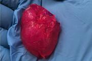 پژوهشگران با تکنولوژی چاپ سه بعدی زیستی، قلبی از جنس سلول های انسانی ساختند