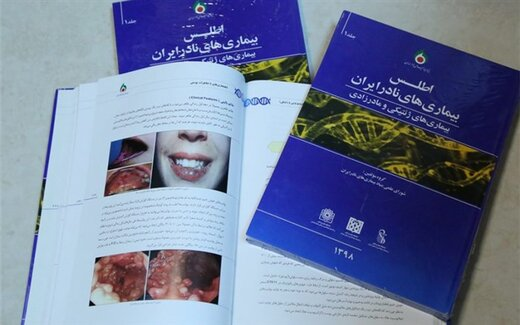 ۳۱۶ نوع بیماری نادر در کشور شناسایی شده است