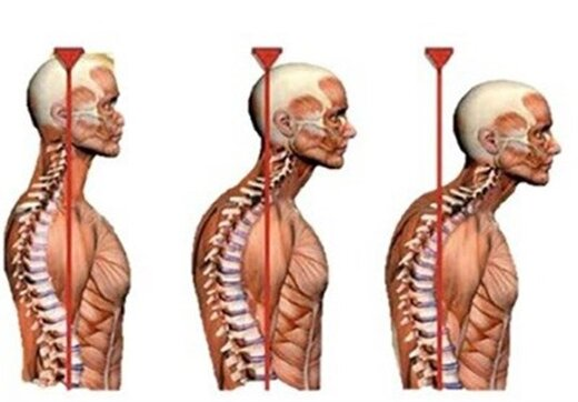 ناهنجاریهای بدنی در بین مردم بیشتر شده است