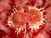 کشندهترین سرطان کدام است؟/ ابتلای مردان به این نوع از سرطان دو برابر زنان است