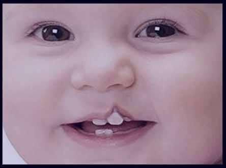 دلایل ابتلاء به یکی از شایعترین بیماریهای مادرزادی سر و گردن