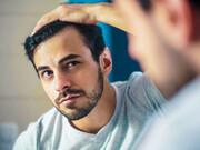 إيران وجهة متميزة جداً لكل أنواع عمليات زراعة الشعر