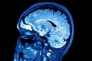 آیا افرادی که هنگام بلندشدن سرگیجه دارند در معرض زوال عقل هستند؟