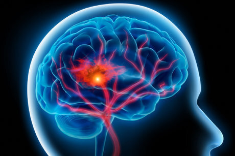 هشدار! سن سکته مغزی به زیر ۵۰ سال آمده است؛ علایم بیماری