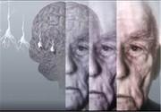 این چربیها خطر ابتلا به آلزایمر را افزایش میدهند