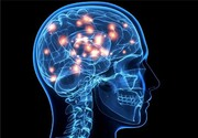 زالو درمانی برای سکته مغزی خطرناک است؟