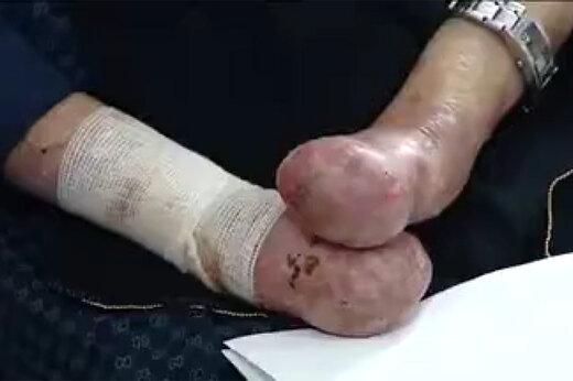 فیلم | مرگ ۱۵ بیمار ایرانی به علت نبودن پانسمان!