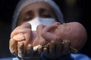 فیلم | سقط جنین غیرقانونی در زیر پوست شهر