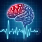 مردم علائم سکته مغزی را جدی بگیرند