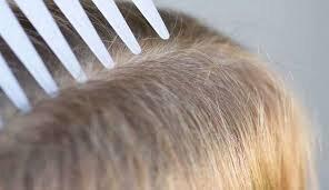 تشخیص شپشِ سر از شوره؛ موی بلند یا کوتاه چقدر در ابتلا موثر است؟