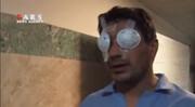 فیلم | تصاویر تلخ از آسیب دیدگان ناآرامیهای بنزینی اخیر کشور در بیمارستان