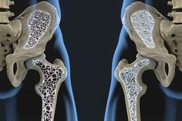 مواد خوراکی تقویتکننده استخوانهای بدن کدامند؟