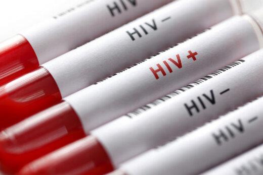 """برای انجام """"تست رایگان HIV"""" به کجا مراجعه کنیم؟"""