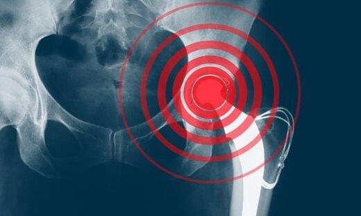 ۳ توصیه کلیدی درباره پوکی استخوان