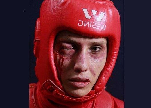 صورتهای زخمی بازیگران یک فیلم کاملا زنانه/ عکس