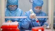احتمال تولید واکسن کروناویروس ظرف ۱۸ ماه
