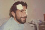 عکس | مجروحیت چشم سردار قاآنی در دوران دفاع مقدس