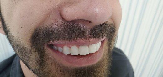 لبخندی جذاب تر و اعتماد به نفس بالاتر با کامپوزیت دندان