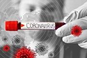 آزمایشگاههای خصوصی برای تشخیص زودهنگام کرونا فعال میشوند