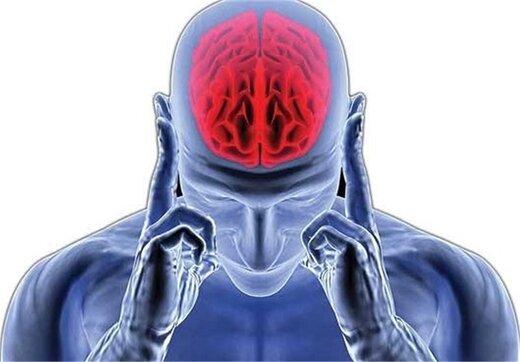 ویروس کرونا میتواند باعث سکته مغزی شود؟