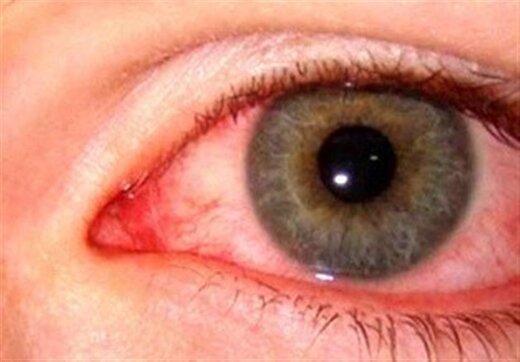 چشمها میتوانند تا هفتهها منبع انتقال ویروس کرونا باشند