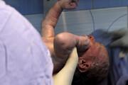 ببینید | تولد نوزاد از جنین دبل فریز پس از 12 سال در اصفهان