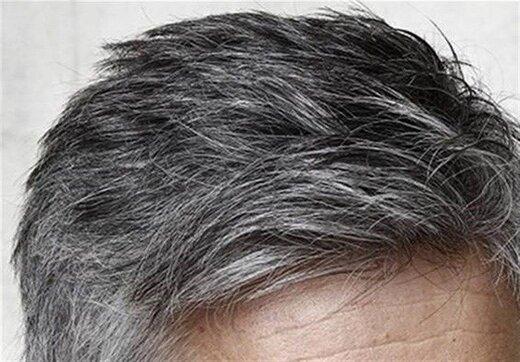 چرا موهایمان زود سفید میشود؟ / یک عامل مهم خاکستری شدن مو