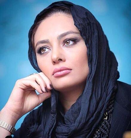 تغییر چهره یکتا ناصر پس از جراحی زیبایی / عکس