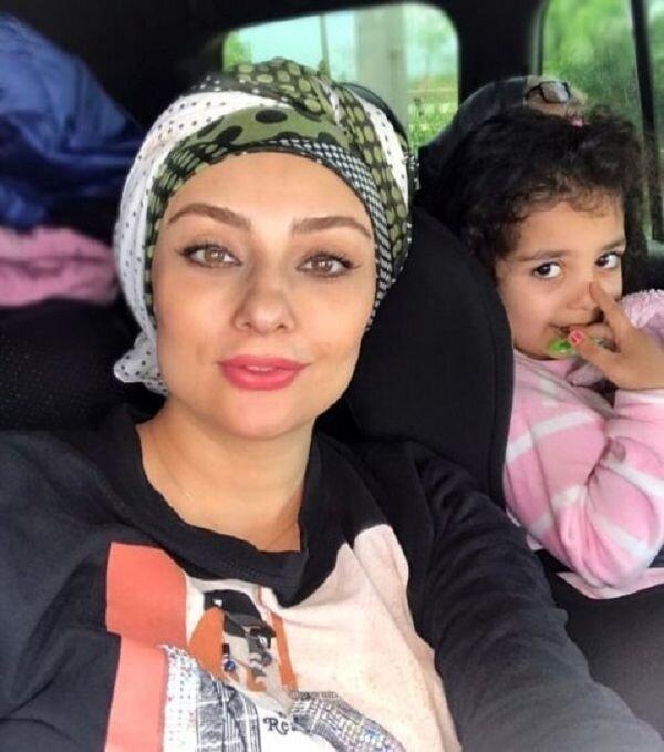 تغییر چهره یکتا ناصر پس از جراحی زیبایی+عکس