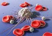 سرطان خون در خراسان جنوبی ۵۰ درصد افزایش یافت