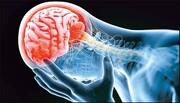 سکته مغزی در انتظار ۳ درصد مبتلایان به کرونا