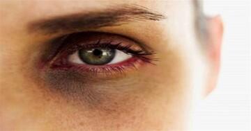 سیاهی دور چشم را با این روشها درمان کنید