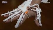 ببینید | تکنولوژی بی نظیراین دستکش برای کمک به بیمارانی که سکته قلبی و مغزی کردند