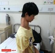 عکس:پسر زرافه ای؛جوان چینی با سه مهره گردن اضافه