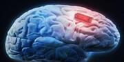 حمله ویروس کرونا به «مغز» ثابت شد