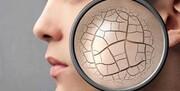 بهترین روش برای برطرف کردن خشکی پوست ناشی از مواد شوینده