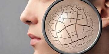 15 روش جوانسازی پوست صورت در خانه/  چین و چروکها را از بین ببریم