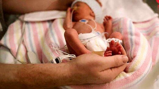 نوزاد دختر نیم کیلویی در همدان متولد شد