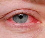 مراقب شایعترین بیماری چشم در فصل گرما باشید