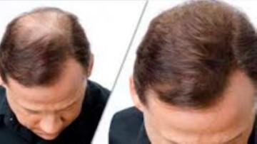 ۴ میوه مغذی که برای رشد مو مفید است