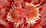 عجیبترین عامل موثر در بروز سرطان پوست