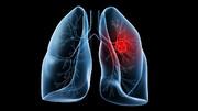 سرطان ریه تنها با یک آزمایش خون ساده تشخیص داده میشود