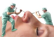 ببینید | جولان عملهای زیبایی غیر استاندارد در آرایشگاهها
