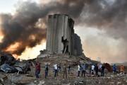 اینجا خاورمیانه است ؛ عروسش در آتش سوخت
