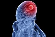 ببینید | راهی جدید برای درمان تومور مغز