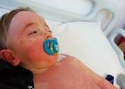 سندرم کودکی مرتبط با کووید-۱۹ در سیستم ایمنی تغییر ایجاد میکند