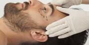ایرانیها سالانه ۳۰ هزار جراحی زیبایی انجام میدهند