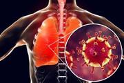 ببینید | کرونا چطور وارد ریهها، سیستم ایمنی و خون میشود؟