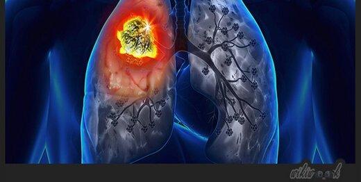 ریه بیماران مبتلا به کرونا پس از بهبودی به حالت قبل بازمیگردد؟